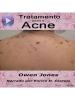 Tratamento Contra A Acne